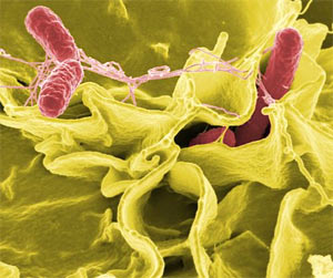 Бактерии убивают себя